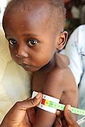 Garsiline Koko, 3, who suffers from malnutrition, has his arms measured at the Pipeline health center in Monrovia, Montserrado county, Liberia on Monday April 2, 2012.