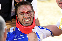 Sykkel<br /> Foto: PhotoNews/Digitalsport<br /> NORWAY ONLY<br /> <br /> BONNET William of FDJ, victim of the crash during the stage 3 of the 102nd edition of the Tour de France 2015 with start in Antwerp and finish in Huy, Belgium (159 kms) *** HUY, BELGIUM - 6/07/2015