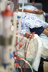 24 February 2020, Jerusalem: Children receive Dialysis treatment at the Augusta Victoria Hospital.