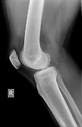 Knee with fractured Patella. x-ray of a 27 year old male patient side view
