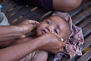 INDONESIA, Sumbawa achipelago; Wera village. traditional massage of a baby by his mother