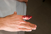 a severed finger mock up injury with make up Model release available
