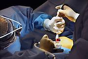 Nederland, Rozendaal, 5-10-2010Operatiekamer van een privé kliniek. De plastisch chirurg is met een borstvergrotingsoperatie bij een jonge vrouw bezig.Foto: Flip Franssen