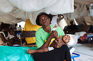 Mettr Mimos holds her 19-month-old son, Wichino St. Julles, after he was treated for an abscess on his head at Choscal Hospital in Cite Soleil, Port-au-Prince, Haiti. The nongovernmental organization Medecins Sans Frontieres staffs physicians and nurses at the hospital.