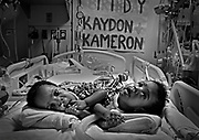 Conjoined twins Kameron (left) and Kaydon Manns celebrate their first birthday Tuesday, March 22, 2011 the UIC Medical Center. The twins, who could not be separated and were only expected to survive a few days, died a few months later.