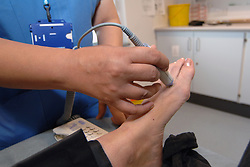 A trainee and qualified nurse test a patient's blood flow for clots and oedema in the leg; in a Community hospital; Bradford,