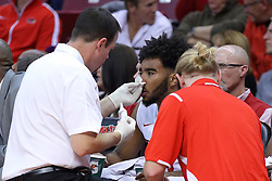 03 December 2016:  John Munn patches up Keyshawn Evans(3) during an NCAA  mens basketball game between the New Mexico Lobos the Illinois State Redbirds in a non-conference game at Redbird Arena, Normal IL