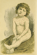 Child suffering from Measles  (Rubeola Morbilli), a widespread viral infection spread by air-borne droplets.  A routine vaccine was not available until 1964.  From Jules Rengade 'Les Grands Maux et les Grands Remedes', Paris, c1890.