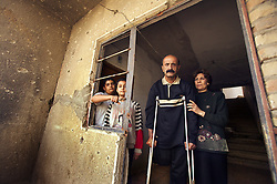 Salah Izat, 51, and his wife Amira Khalid, 44, with their children Ahmed Salah, 12, and Sally Salah, 10, are seen at their home in Baghdad, Iraq, March 2, 2004. Izat's home was destroyed in March 2003 when an American missile hit just outside their front door. A year later, Izat is getting better pay wages, but has lost his right leg from diabetes. He says the lack of medical resources after the war made him unable to get proper attention for his ailing leg, possibly being the reason it became so gangrenous that it had to be amputated.