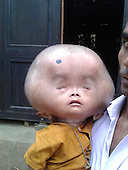 EXCLUSIVE The boy with the 20lb head