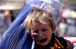 """KABUL 03 August 2005..In a crowded street of Kabul, I come across a woman and a child with a dark lump on her face...The only words the woman says to me are:' DOCTOR.... DOCTOR'...I write down her name & address:..""""Shabana, Panza Family, Khair-Khana, Kabul"""""""