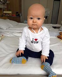 """Sila Sahin releases a photo on Instagram with the following caption: """"Hallo, ich hei\u00dfe Felix und bin schon 7 Monate alt. Als ich 4 Monate alt war hat man bei mir LEUK\u00c4MIE festgestellt. Ich wei\u00df noch nicht, was das hei\u00dft, aber seitdem bin ich fast nur noch im Krankenhaus. \nUnd das ist nicht so toll!\nIch w\u00fcrde auch gern mal wieder nachhause und sp\u00e4ter einmal auch in den Kindergarten gehen, mit Freunden Fu\u00dfball spielen und andere tolle Dinge tun.\nDie \u00c4rzte sagen aber, dass das nur geht, wenn ich einen passenden Knochenmarkspender finde...die Chancen daf\u00fcr stehen 1:2.000.000.\nMeine Eltern sind deshalb sehr traurig...obwohl das doch eine riesige Zahl mit sooo vielen Nullen ist.\nBitte hilf mir und lass dich typisieren! \nDu musst auch keine Angst davor haben und garnicht weinen, weil das n\u00e4mlich garnicht weh tut! \nwww.Felix-braucht-DICH.de . Es liegt mir sehr am Herzen lasst euch bitte registrieren ! Ich habe es schon gemacht ! \ud83d\ude4f \n#dkms Link in meiner Bio !"""". Photo Credit: Instagram *** No USA Distribution *** For Editorial Use Only *** Not to be Published in Books or Photo Books ***  Please note: Fees charged by the agency are for the agency's services only, and do not, nor are they intended to, convey to the user any ownership of Copyright or License in the material. The agency does not claim any ownership including but not limited to Copyright or License in the attached material. By publishing this material you expressly agree to indemnify and to hold the agency and its directors, shareholders and employees harmless from any loss, claims, damages, demands, expenses (including legal fees), or any causes of action or allegation against the agency arising out of or connected in any way with publication of the material."""