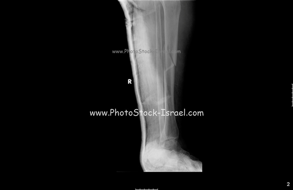 54 year old patient with a fracture of the Tibia and Fibula
