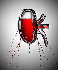 Bleeding Kidney - Men's Health