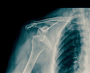 x-ray Dislocated shoulder on a 75 year old female
