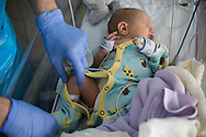 A male nurse checking over three-day-old Finn Jones at the Evelina London Children's Hospital neonatal intensive care unit in central London. The son of Philip and Kathryn Jones from Canterbury, Kent, he was born with a pre-diagnosed condition which required a life-saving, five-hour heart 'switch' operation to be carried out within the first two weeks of his life. The operation, which took place when Finn was 10 days old was successful, however, due to other near fatal complications the his recovery during the subsequent six weeks was slow and difficult.