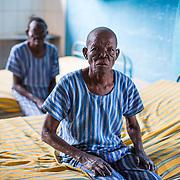 Tanzania - Leprosy