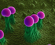 Rare double glandular trichome. Color-enhanced Scanning Electron Micrograph (SEM) of the surface of a marijuana (Cannabis sativa) plant leaf, showing glandular cells, called trichomes. These are capitate trichomes that have stalks. They secrete a resin containing tetrahydrocannabinol (THC), the active component of cannabis when used as a drug. The spherical cells at the top of the trichomes are 60 um in diameter.
