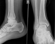 X-ray of a right ankle of a 43 year old male patient with a fractured Medial Malleolus Front view