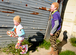 Cape Town- 180830  Linamandla Tyongozi  and Siphosethu Tyongozi from kuyasa Khayelitsha playing. The family are living with albinism. Albinism is a genetic condition. Primarily, albinism affects the hair eyes skin and vision The most common cause of albinism is an interruption in the functioning of the enzyme tyrosinase Picture:Ayanda Ndamane/ African News Agency ANA