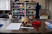 The skull of a Srebrenica victim in the Forensic Anthropology lab of the Podrinje Identification Project...Matt Lutton for The International Herald Tribune..Capture of Ratko Mladic. Tuzla, Bosnia and Herzegovina. May 30, 2011.