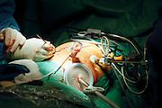 Nederland, Nijmegen, 17-9-2002..Operatie in academische ziekenhuis waarbij dmv laproscopie een donornier wordt uitgenomen om later bij nier patient geplaatst te worden. Hiebij wordt de nier inwendig losgeknipt en uit het lichaam getrokken. Operatiekamer, specialisme, tansplantatie, chirurgie, gezondheidszorg, wachtlijsten, donorcodicil ..Foto: Flip Franssen