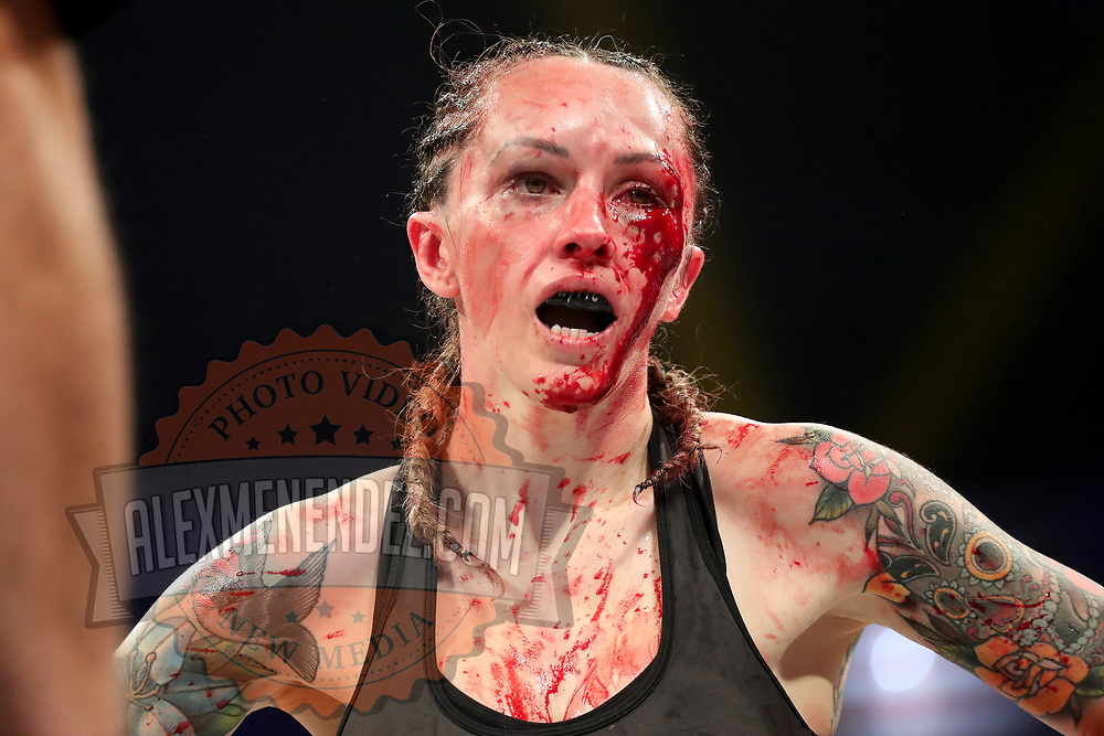 TAMPA, FL - FEBRUARY 05: Charisa Sigala bleeds as she fights against Taylor Starling during the BKFC KnuckleMania event at RP Funding Center on February 5, 2021 in Tampa, Florida. (Photo by Alex Menendez/Getty Images) *** Local Caption *** Charisa Sigala; Taylor Starling