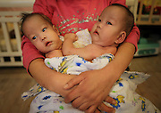 BEIJING, CHINA - DECEMBER 05:  China Out - Finland Out<br /> <br /> Conjoined twin baby girls connected at the abdomen abandoned in Chinese orphanage<br /> <br /> Conjoined twin baby girls have been abandoned at an orphanage in China after it is believed their parents could not afford to care for them. <br /> The girls, who are only about three months old, are connected by their abdomens and lie face-to-face. <br /> They are awaiting specialist treatment in Beijing where it is hoped they can be separated.<br /> he girls were handed to the organisation in Pingdingshan City, Henan Province, on August 11 and have since been named Zheng Hanjing and Zheng Hanwei. <br /> However, it is not known exactly how old they are.<br /> <br /> <br /> Hanjing and Hanwei have been transferred to a children's home in Beijing while they await a variety of tests to determine if they share any vital organs.<br /> They are being cared for by Mercy Corps children's home and staff member Deng Zhixin said that from 140 rescued children, this was their first case of conjoined twins. <br /> She told Chinese news site Fawan that she refused to 'judge' the twin's mother for abandoning them.<br /> <br /> <br /> She said it was likely their mother may have been forced to give up her children because of poverty and being unable to afford proper medical care. <br /> Deng said the pair are 'lively' and they are turned by staff every hour as they cannot roll by themselves. <br /> It is hoped the twins could be separated as early as this month but surgeons still need to determine what, if any, organs the babies are connected by.<br /> <br /> Next week the babies will be given a heart examination and abdominal ultrasounds to see if any organs are shared. <br /> About one in every 200,000 live births worldwide result in conjoined twins.<br /> <br /> Around 40 to 60 per cent of conjoined twins arrive stillborn, and about 35 per cent survive only one day and long-term survival is between five and 25 per ce