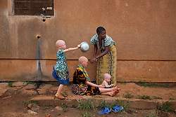 A woman gives a haircut to another female resident while their children prepare for dinner at the Kabanga Protectorate Center and School in the northwest corner of Tanzania. The center is a safe haven for people with albinism, who face discrimination as well as serious health risks, like skin cancer and blindness. Originally a school for children with disabilities, the center now shelters about 80 people with the genetic disorder that hinders the body's ability to produce pigment. That's roughly one-third of its residents.