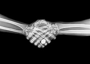 X-ray of two people shaking hands on black background