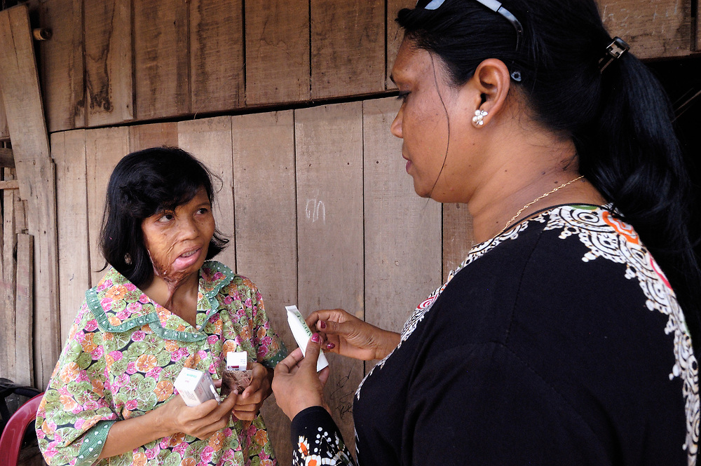 Clara Biswas (right), a United Methodist missionary who works with women and children and youth in the Cambodian capital of Phnom Penh, visits Mom Chantha, who was burned in an acid attack and who has received medical help from United Methodist Women. Biswas is from Bangladesh..