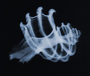 X-ray of a Murex seashell.  This is an x-ray of a fossil murex seashell.  The x-ray shows many fractures in the shell