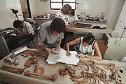 """Forensic research. (1992) Argentine Forensic Anthropology team in morgue of San Isidrio Hospital measuring and cataloguing bones of a """"desparacido"""" a disappeared Argentinian.  Mercedes Doretti (sleeveless), Patricia Bernardi, Silvana Turner (short hair), Carlos (Marco) Somigliana (beard), Luis Fondebrider.  Data is entered into a computer and eventually they hope to match data to make an ID.  They hope to extract DNA from bones for DNA fingerprinting. Skeleton in a forensic laboratory. The bones have been numbered for identification. The researchers are trying to determine the identity of the body, which can be done by extracting and studying DNA. DNA (deoxyribonucleic acid) is the chemical responsible for heredity, and is different in each individual. These are the remains of someone abducted and murdered during the military rule in Argentina between 1976 and 1983. The hole in the skull is testament to a violent death.  Buenos Aires, Argentina. DNA Fingerprinting. MODEL RELEASED"""