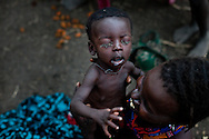 A Murle woman holds an ill child in Jonglei state, Southern Sudan which is suffering from severe food insecurity. She has to share her herd's milk with calfs, and is unable to feed all of her children daily. They must wait their turn. The Boma hospital is the only in the region.