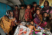 This was Abid's last picture with his gypsy family at a waste disposal area in Lahore, Pakistan. He was beaten up, burnt around the pelvic area and limbs with multiple fractures and a bullet shot in his leg by his powerful & well-connected in-laws for a forced divorce. Unable to buy proper medicine and receive treatment, Abid had been lying on his bed for four months without plaster on his arms and legs due to burnt skin. He died a week after this photograph that was later used in the court as evidence of his condition.