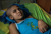 2016/05/29 - Barcelona, Venezuela: Yulitza Roa, 15, is waiting for her next operation in Dr. Luis Razetti Hospital, Barcelona. She has a brain tumor and went over three surgeries and she is waitng for a fourth, but without scanning equipment it is impossible. (Eduardo Leal)
