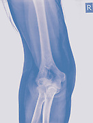 X ray of a fractured elbow (Humerus bone) of a 70 year old female patient Front view