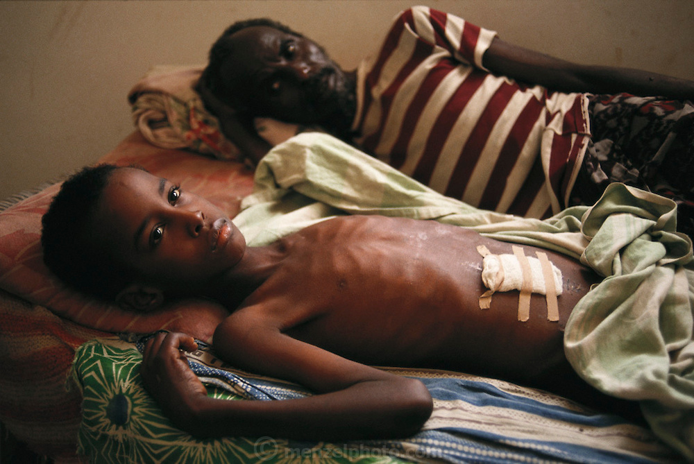 "Wounded boy with his father at the ""Villa Hospital"", a private home turned into a hospital in the north sector (Ali Mahdi controlled sector) of Mogadishu, the war-torn capital of Somalia where 30,000 died between November 1991 and March 1992."