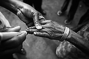 A woman's finger is marked with indelible ink after she was vaccinated against polio during the second round of vaccination in Djambala Village, Republic of Congo on Wednesday December 8, 2010.