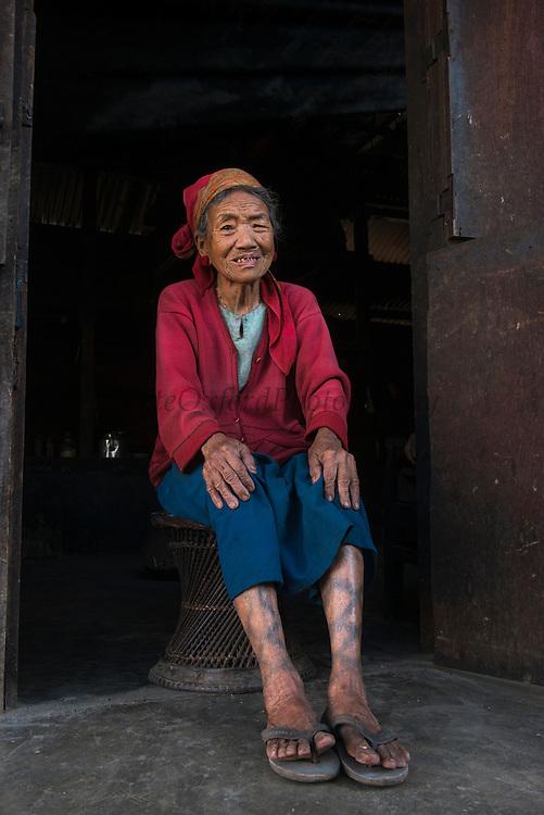 Ao Naga woman with leg tattoos<br /> Ao Naga headhunting Tribe<br /> Mokokchung district<br /> Nagaland,  ne India