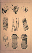 """TERMINOLOGY OF MONKERY (Clothing and accessories) from the book ' Monachologia, or, Handbook of the natural history of monks : arranged according to the Linnean system ' by Born, Ignaz Edler von, 1742-1791; Krasinski, Walerian, 1780-1855 Published in 1852 in Edinburgh by Johnstone & Hunter. This is a  Victorian anti-Catholic/anti-European satire or parody written in pseudo-scientific natural history jargon, complaining of the laziness, odd dress & weird habits (literally!), strange hours & stranger noises of various orders of monks, deposited of British shores by Papist Europeans of little merit and bad intent. Each major order of Monk is depicted & described in most unflattering terms. """"Hence it is evident, that the monk forms a distinct class of mammalia, which holds a middle place, and forms a connecting link between man and monkey."""""""