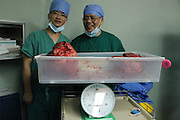 GUANGZHOU, CHINA - (CHINA OUT) <br /> <br /> 15kg Intraperitoneal Tumor Removed From 11-Year-Old Girl<br /> <br /> The main surgeon Professor Li and Dean Xu Kecheng express their excitement after removing a 15kg intraperitoneal tumor ,  in Guangzhou, Guangdong Province of China. Han Bingbing, an 11-year-old girl from Heilongjiang, successfully received an 8-hour surgery operation to remove an intraperitoneal tumor. After 4 years, the tumor had reached a weight of 15kg and a size bigger than two footballs. As of June 18th, the tumor filled 5/6 of Bingbings abdomen and caused her internal organs to gradually collapse. The Xukecheng Health Care Corporation raised a donation of 120 thousand RMB (19.3 thousand USD) that went towards Bingbing's surgery.<br /> ©Exclusivepix