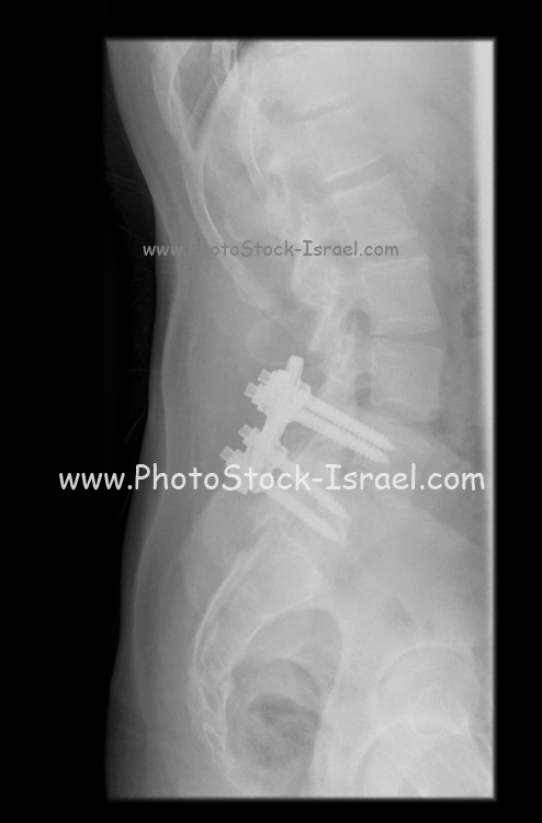 x-ray of a 31 year old male with screws in L4 and L5 to relieve lower back pain