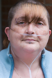 Portrait of woman who is severely asthmatic with oxygen tubes attached to her nose to help her breathing,