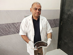 """EXCLUSIVE: By Sudipto Maity in India An Indian man complaining of stomach ache had over 100 iron nails removed from his intestine by doctors. The operation took place on Monday in the country's north west Rajasthan state. Reports said 42-year-old Bhola Shankar had reached the government hospital in Bundi town , complaining of excruciating pain. However, it was after conducting the initial tests that doctors were left baffled. X-ray of the patient showed a cluster of a rather unusual item in the man's stomach. A CT scan confirmed the suspicion. Operating on the patient, a team of surgeons, led by Dr Anil Saini, recovered and removed at least 116 iron nails. The team also shot a video of the operation, which showed nails being extracted from the intestine of the patient. Saini said, """"This is the first such case I have come across,"""" The doctor added it may be the first time something like this took place in Rajasthan. In 2017, doctors had removed at least 150 stationary pins from a patient's stomach in the same town. """"What surprised us was the length of the nails. They measured 6.5 centimetres. To have such big iron nails removed from a patient's body is unprecedented,"""" the senior doctor added. He also called it a bizarre case. Meanwhile, doctors have deemed the patient mentally imbalanced. """"The patient is not able to narrate how the nails ended up in his intestine,"""" Saini said, adding, """"He is lucky the sharp objects did not puncture his organs, else, it could have proved fatal."""" The patient's younger brother said the former has been taking medicine for mental illness for the last two and half decades. However, he too couldn't explain how the nails ended up there. Doctors believe the man was in the habit of swallowing sharp objects as apart from the nails, doctors also extracted metal wires. Despite the lengthy operation, the patient was recovering well. 13 May 2019 Pictured: Dr Anil Saini who operated on Bhola Shankar shows the times extracted from his patient's stoma"""