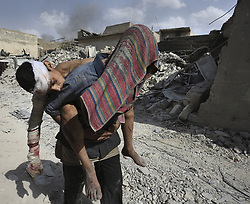 July 2, 2017 - Mosul, Iraq - A man carries an injured child in brutal heat on July 2, 2017 until finding a vehicle to transport the injured to the team from Global Response Management stabilization point near the Old City.  Civilians, many injured and weak, flee continued battle with ISIS in West Mosul amid ruins of the city. (Credit Image: © Carol Guzy via ZUMA Wire)