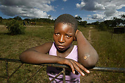 Young girl who was attacked by Zanu PF people around the time of the Zimbabwe elections.