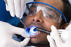 Patient being exposed to ultraviolet light during dental treatment,