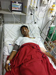 "EXCLUSIVE: Indian doctors have saved the life of a 21-year-old man who fell off an under construction building and got himself impaled on iron rods that pierced though his chest that miraculously missed his heart but puncturing the liver. The incident happened on January 12 around 7pm when Rajendra Pal, a construction worker from West Bengal, slipped and fell off the roof of a building at a construction site in Nariman Point, Mumbai. Fortunately, Pal did not suffer any fatal injuries as the rods did not puncture most of his vital organs. Hearing the loud thud and the cries of Pal, his fellow workers rushed to the spot. They soon informed the police and fire brigade about the accident. The rescue time arrived at short notice, cut the rods off the pillar and managed to rush him to the state-run GT hospital. According to the hospital authorities, the rods had caused penetrating trauma to chest and abdomen, patient was rescued by fire brigade after cutting the 12mm construction iron rods. Dr Jitendra Sankpal, senior surgeon at GT hospital, said: ""The patient was conscious when he was brought to the hospital. Two 5-ft-long iron rods pierced his abdomen and chest. However, the man was lucky as the rods did not puncture his lungs or other vital organs. When the patient was brought in, his condition was critical. On inspection, we discovered there were two 12mm iron rods, each 75cm long had penetrated through his chest and upper abdomen. According to the doctors, the first one had entered from right anterior axillary line subcutaneously to the upper side of left chest. Clothes were stuck inside the entry point of rod. The second rod had penetrated from right posterior axillary line through seventh intercostal space to epigastric region. ""It was a very difficult operation. The first rod that came out though his chest barely missed the patient's heart by 1 inch. We started the operation at 10pm and concluded it at 1am. The patient's vitals are normal and he is out of da"