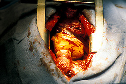 Stock photo of a Jarvik 7 atificial heart inside patient